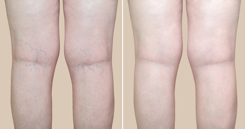 Legs before and after varicose vein treatment