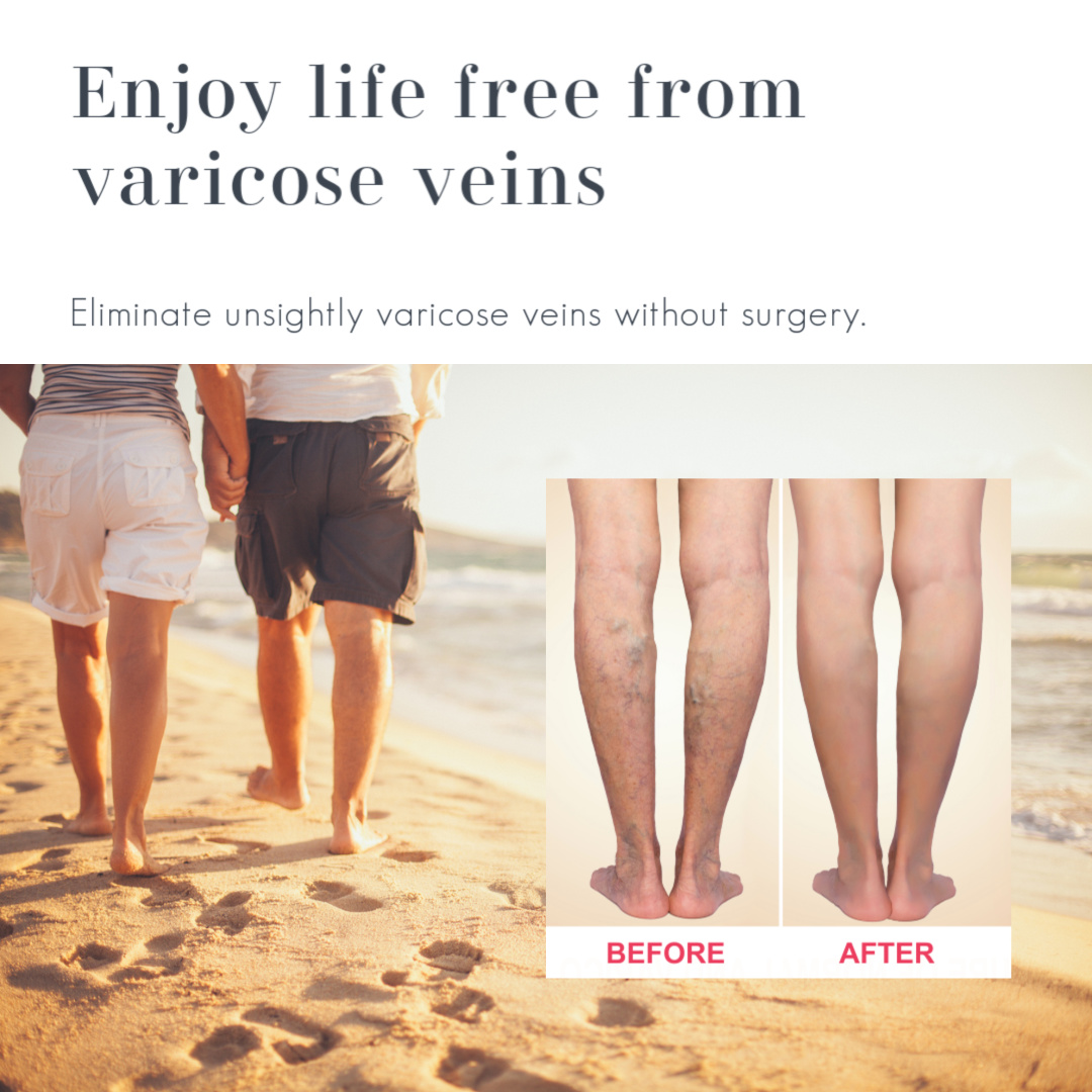 Legs before and after varicose vein treatment on a background of a couple walking on the beach