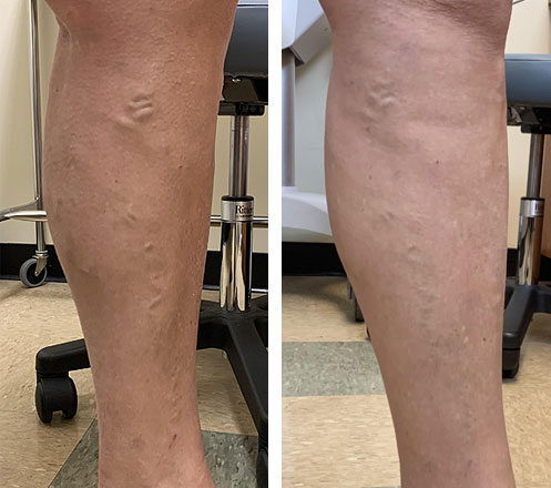 laser vein treatment Temecula